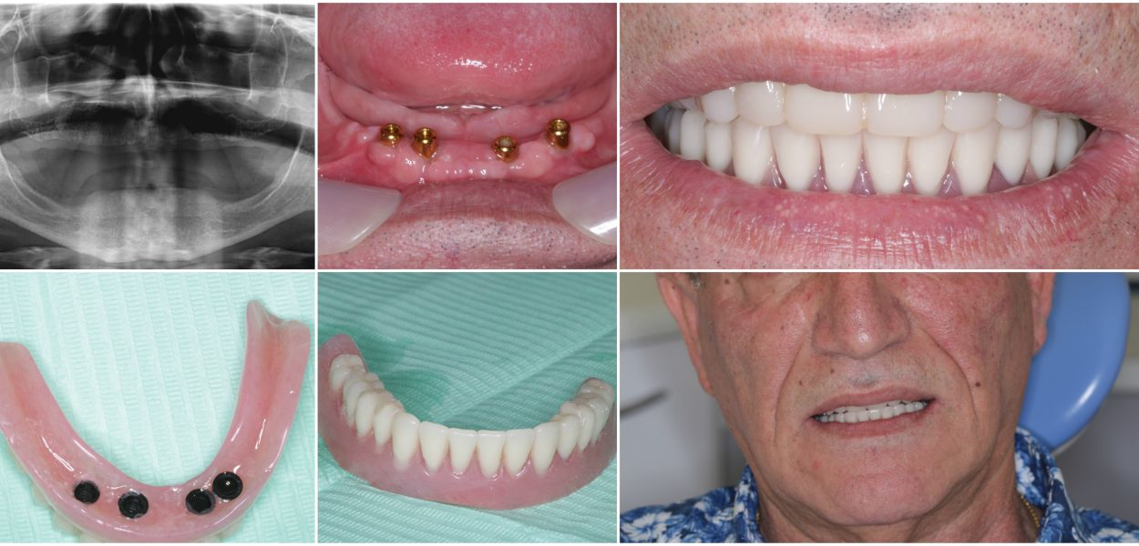 Implant supported dentures green lane dental centre lower denture supported by implants solutioingenieria Choice Image