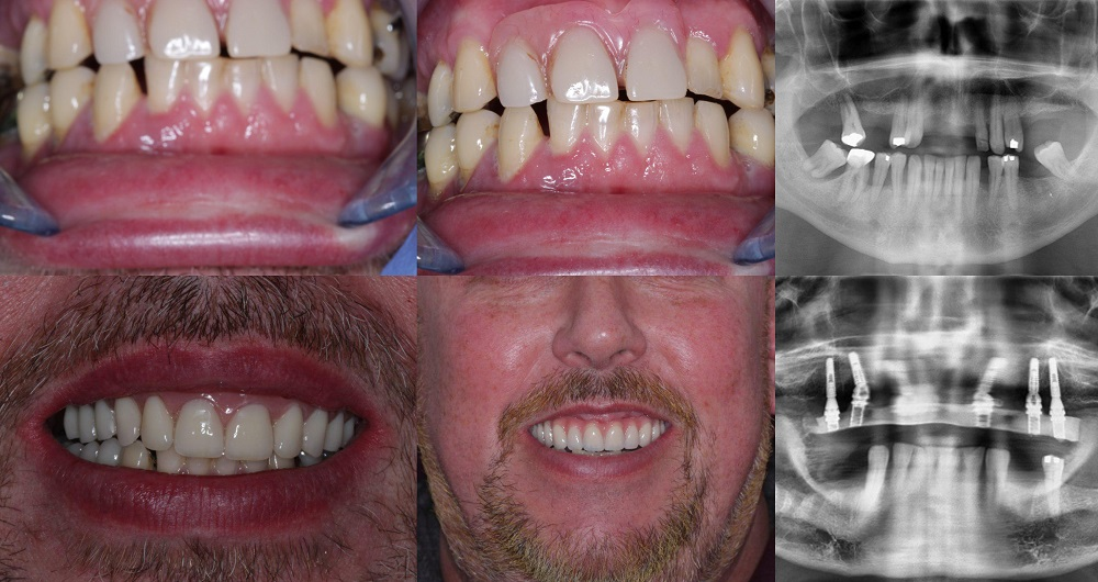 implant smile gallery