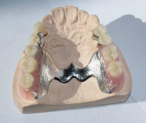 Dentures in South East London   Accepting New NHS Patients