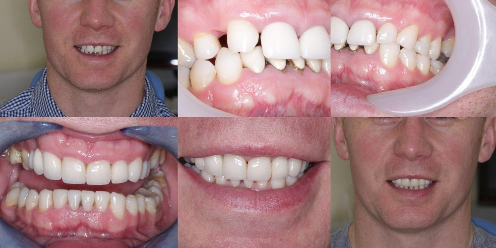 Smile Gallery | Green Lane Dental Centre | Penge, London SE20