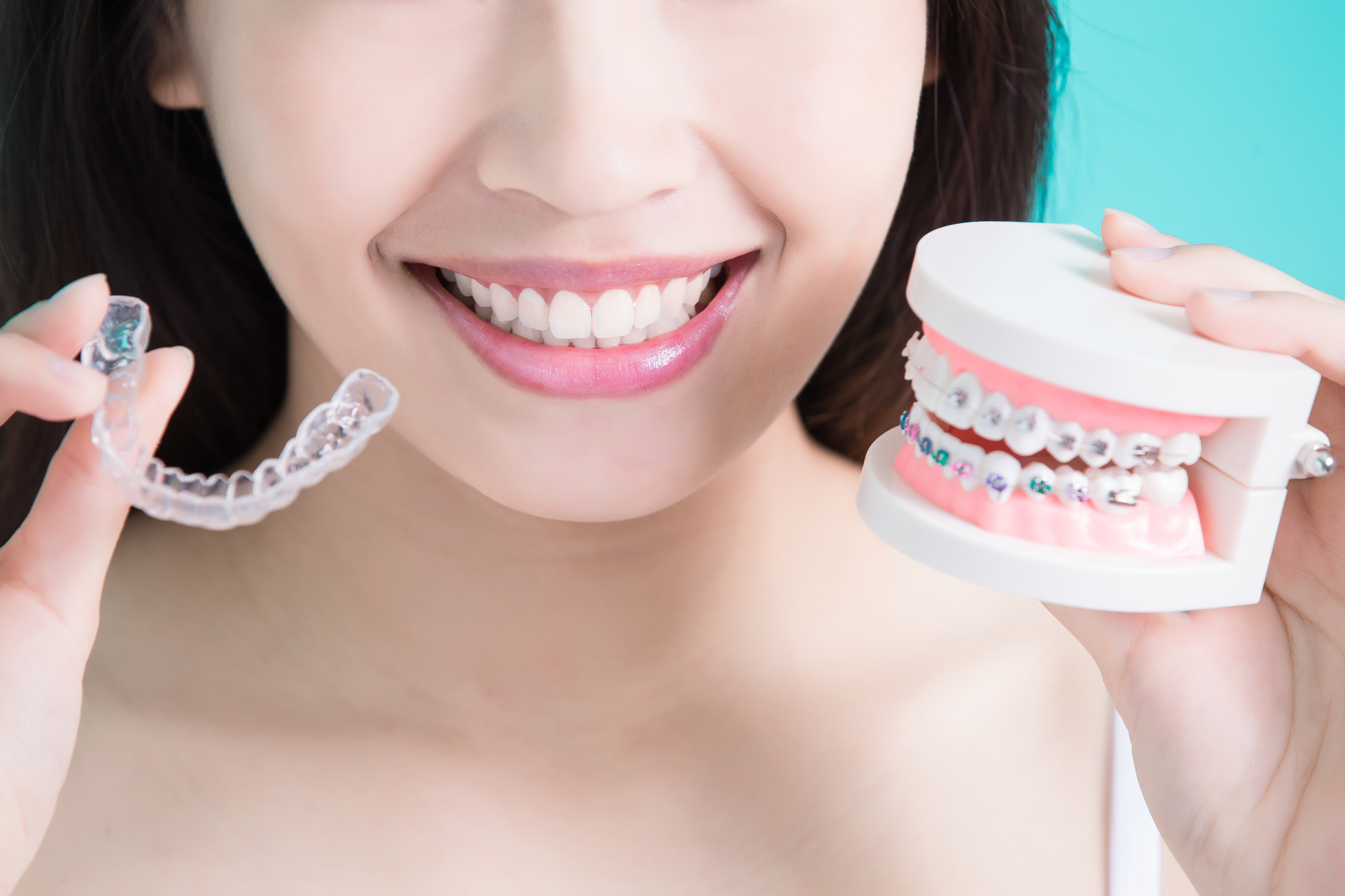 Invisalign or braces