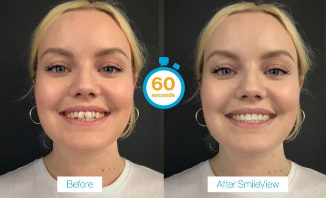 invisalign before after image